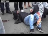 อุบัติเหตุ กระดูก มอเตอร์ไซค์ บาดเจ็บ ชน ประมาท อันตราย