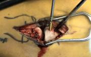 คลิป ผ่าตัด เชื่อม ประสาน กระดูก หัก หลุด แตก หวาดเสียว