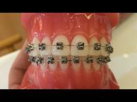 จัดฟันแบบใหม่ จัดฟันแบบไม่มัดยาง