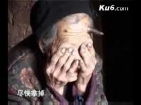 มีจริงหรือเนี่ย! หญิงชราอายุ 100 ปี จู่ๆ มี เขา งอกขึ้นที่หัว