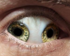 อาการ แปลก เกี่ยวกับ ดวงตา
