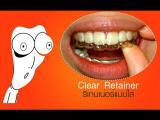 คลิป ชวนดูรีเทนเนอร์จัดฟันแบบใส