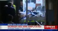 เกิดเหตุถังเบียร์ระเบิดส่งผลให้มีผู้บาดเจ็บสาหัส 1 ราย โดยแรงระเบิดทำให้เขาเสียแ