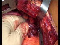 คลิป ผ่าตัดหัวใจเอากระสุนออก เห็นแล้วสยองสุดๆ