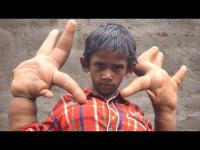 เด็กอินเดียวเกิดมาแปลกมีนิ้วใหญ่เกือบเท่าขาตัวเอง