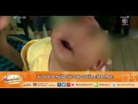 คลิป เรื่องเล่าเช้านี้ - แม่วอนช่วย หนูน้อยวัย 3 เดือน ไม่มีกระโหลกศีรษะ