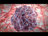 คลิป ทุเรียนน้ำ หรือ ทุเรียนเทศ สมุนไพรต้านมะเร็ง ที่ควรรู้จัก