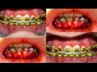 จัดฟัน แต่เป็นโรคเหงือก สยอง