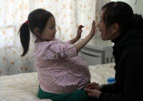 4ขวบ ป่วย ท้องโต จีน อาหมวย