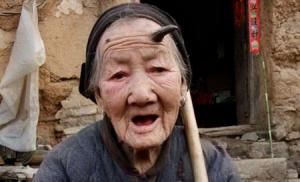 เขาปีศาจ  งอก  หน้าผาก  แม่เฒ่า   อายุ  ร้อยปี
