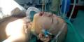 หวาดเสียว เด็กจีนหกล้ม ไม้เสียบลูกชิ้นแทงทะลุเพดานปากทิ่มสมอง