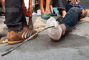 สยอง...หนุ่มพนักงานส่งของโดนเหล็กเส้นเสียบคาเท้า