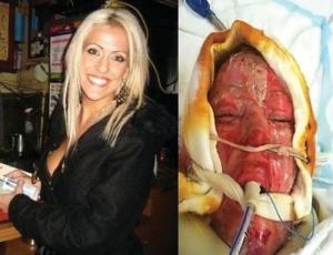 ผู้หญิงคนนี้ถูกไฟคลอกทั้งตัว คุณจะตกใจ เมื่อเห็นหน้าใหม่ของเธอ