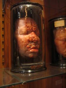 พิพิธภัณฑ์การแพทย์ ที่เต็มไปด้วยของสะสมสุดแปลก และพิสดาร (งานนี้มีหลอน)